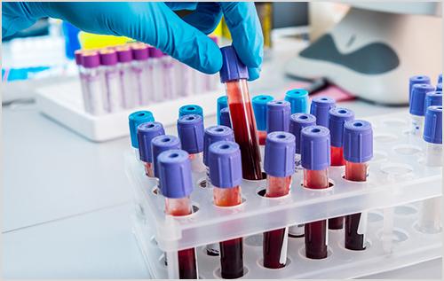 Đâu là địa chỉ xét nghiệm Bệnh Mycoplasma ở Bình Thạnh