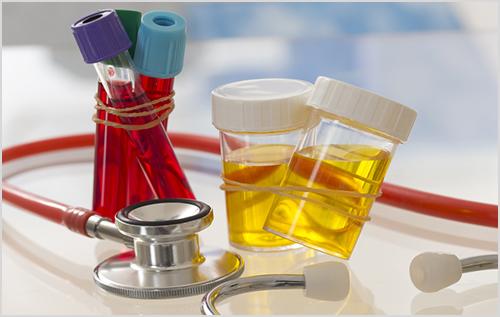 Địa chỉ nào xét nghiệm Bệnh Mycoplasma ở Thủ Đức tốt nhất?